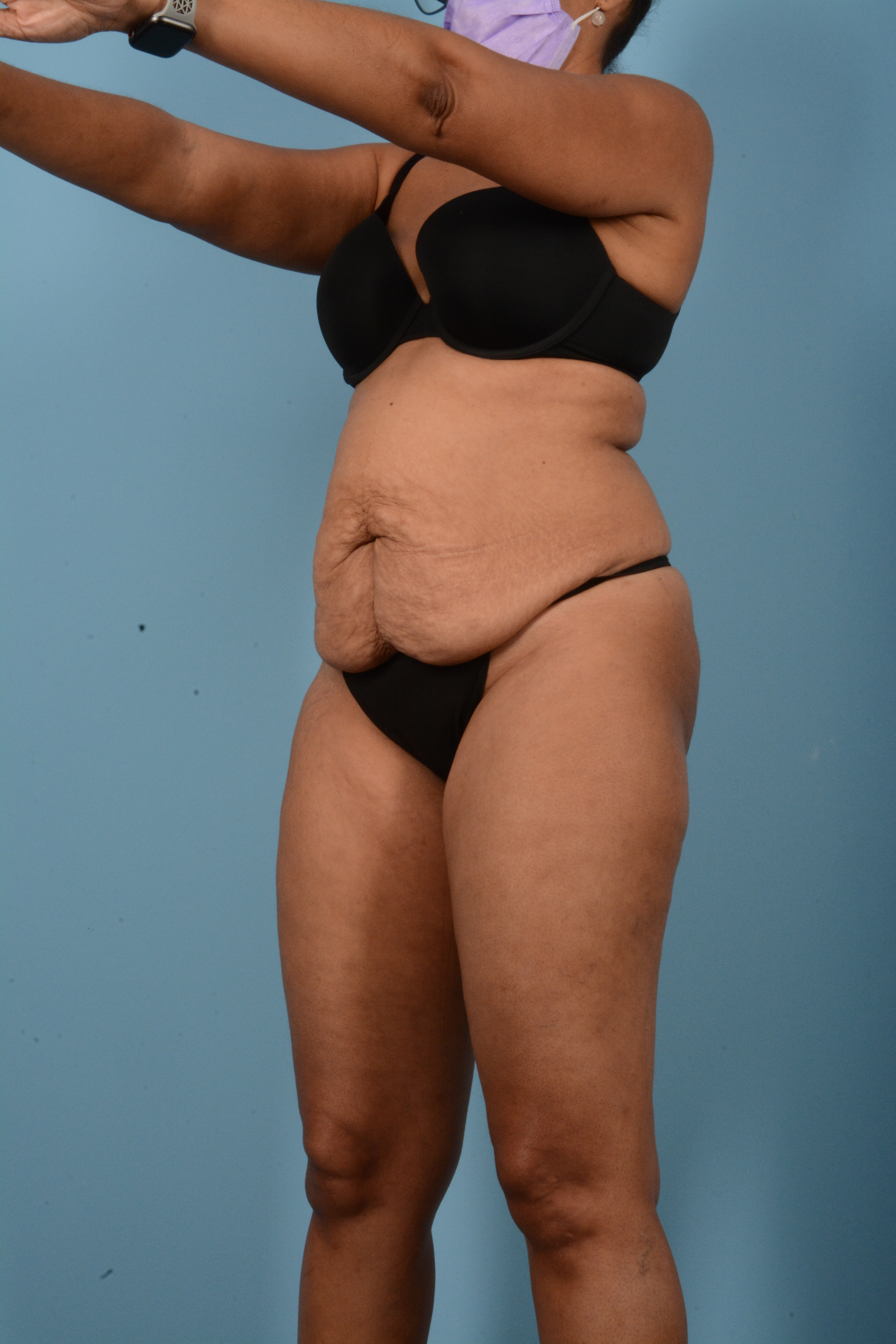 Tummy Tuck Gallery - Patient 11203331 - Image 7