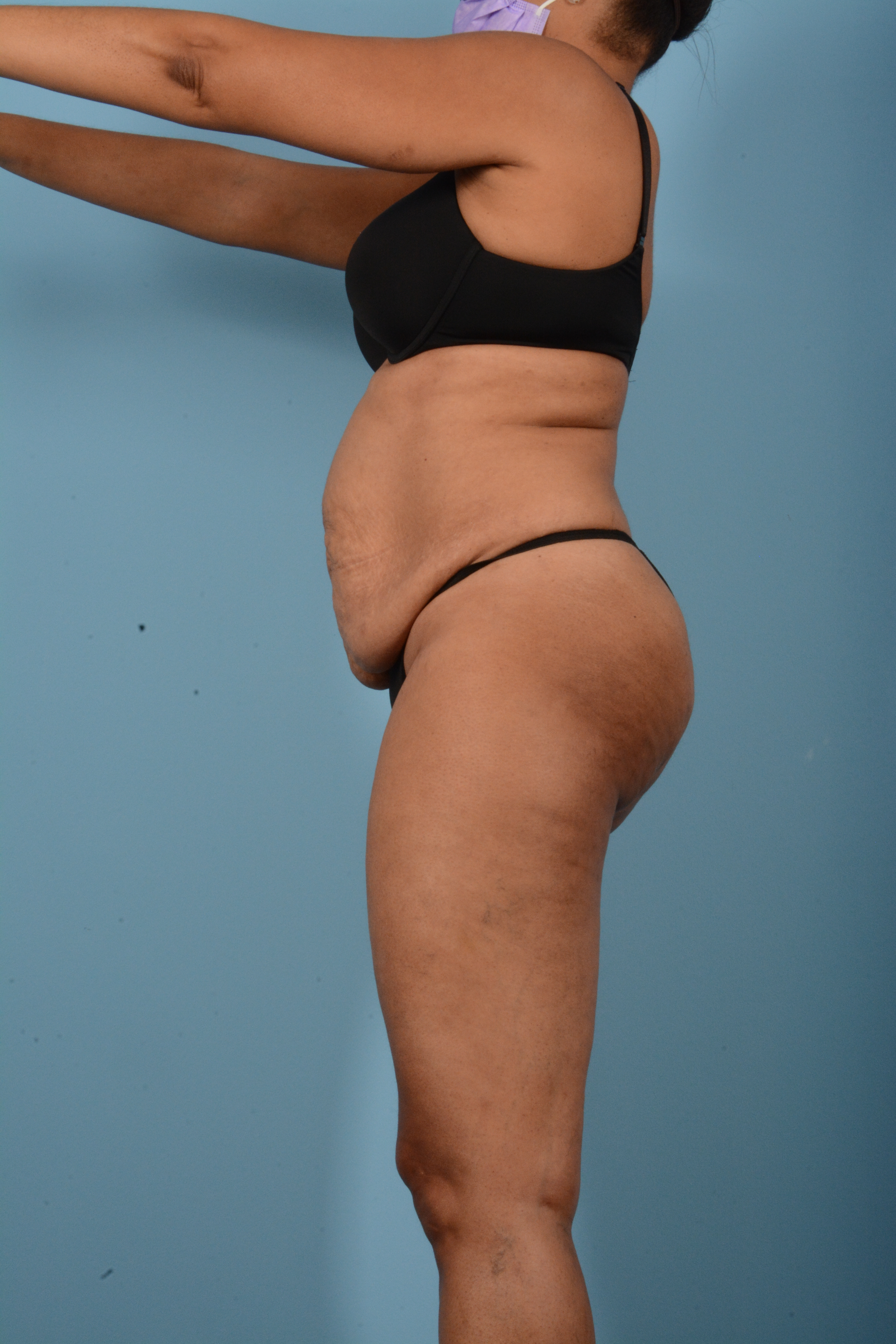 Tummy Tuck Gallery - Patient 11203331 - Image 9