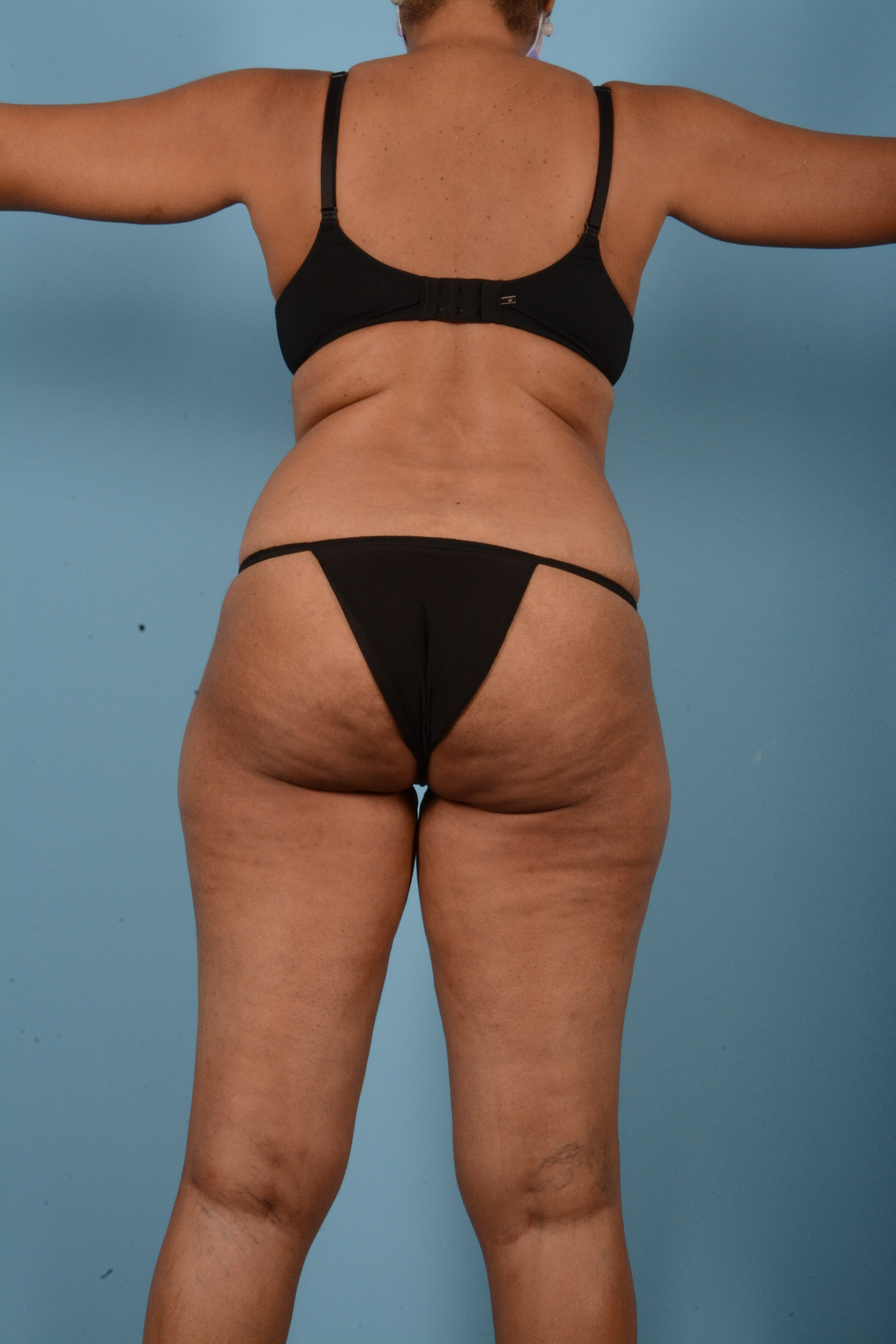 Tummy Tuck Gallery - Patient 11203331 - Image 11