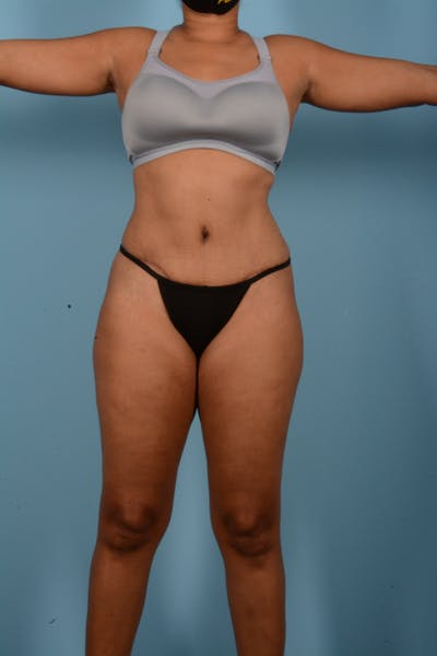 Tummy Tuck Gallery - Patient 11203331 - Image 2