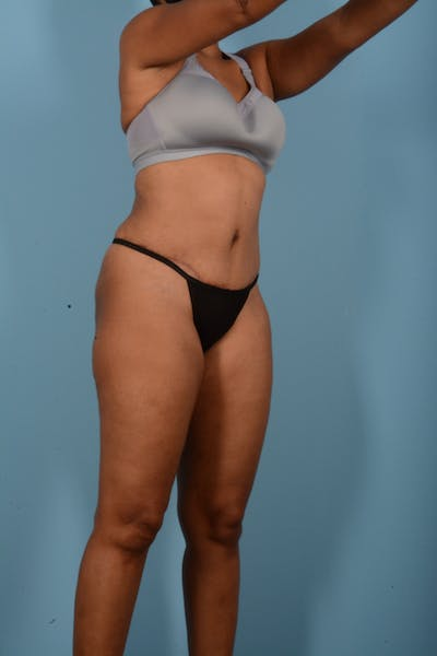 Tummy Tuck Gallery - Patient 11203331 - Image 4