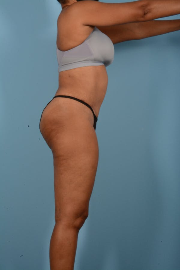 Tummy Tuck Gallery - Patient 11203331 - Image 6