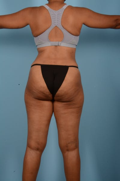 Tummy Tuck Gallery - Patient 11203331 - Image 12