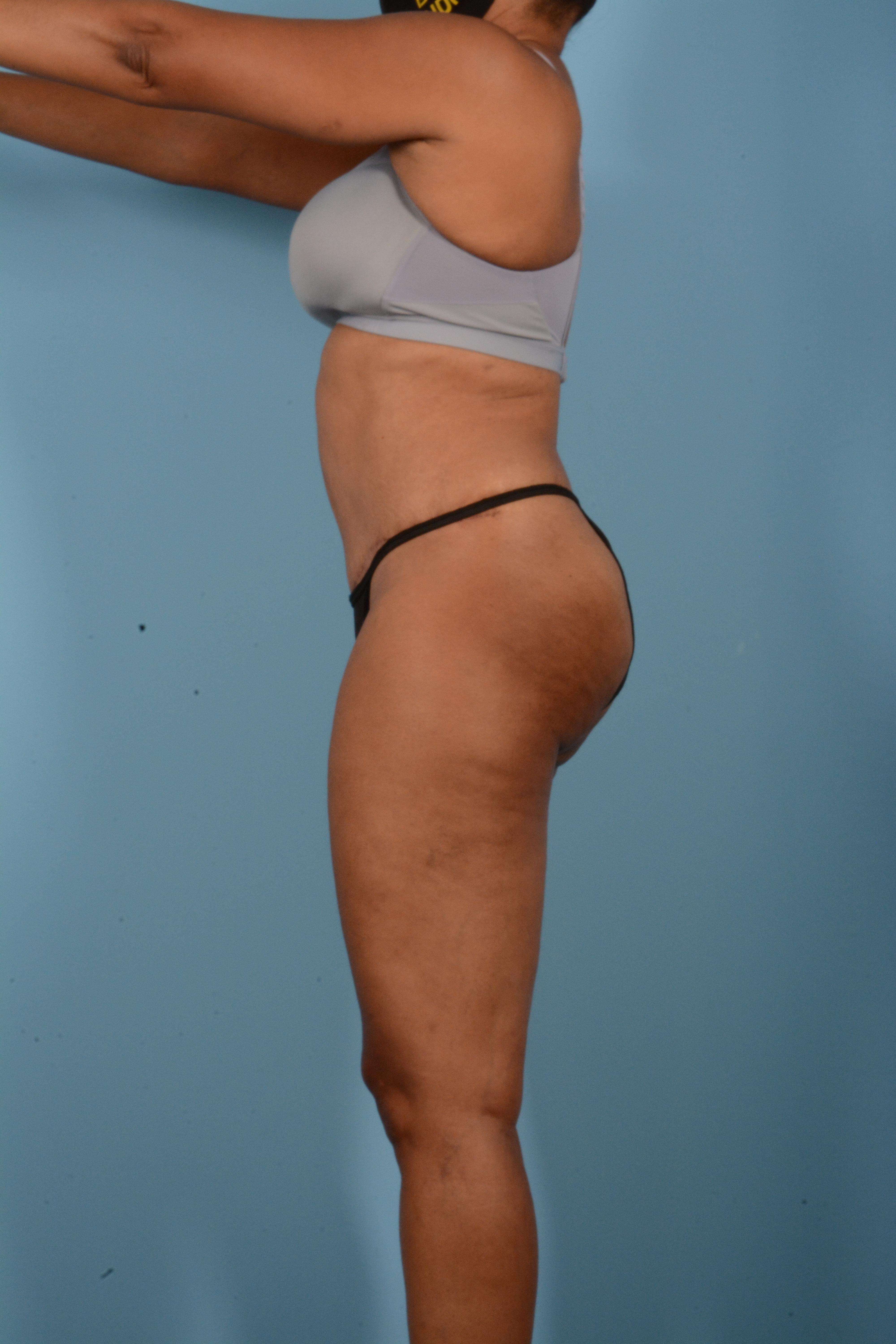 Tummy Tuck Gallery - Patient 11203331 - Image 10