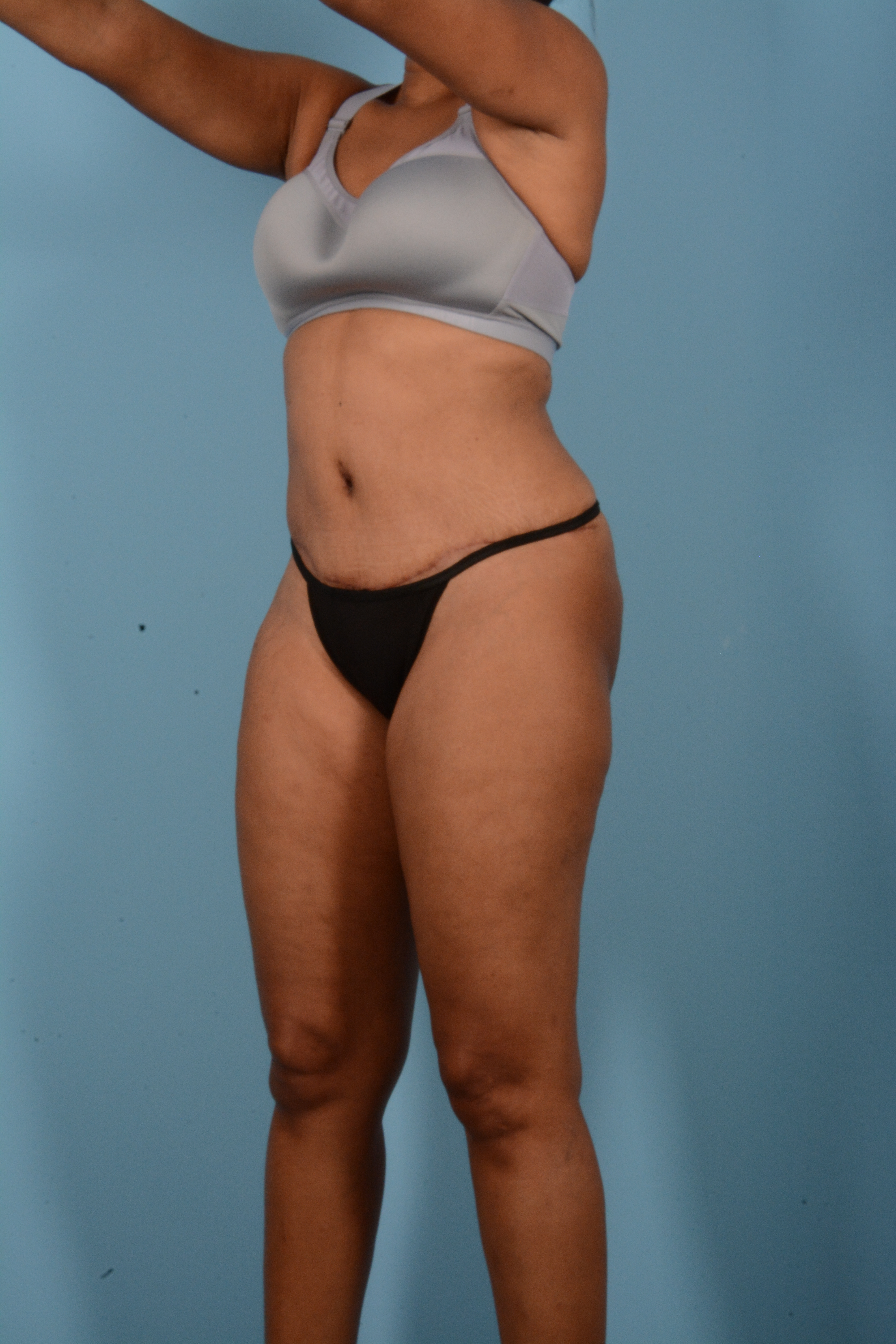 Tummy Tuck Gallery - Patient 11203331 - Image 8