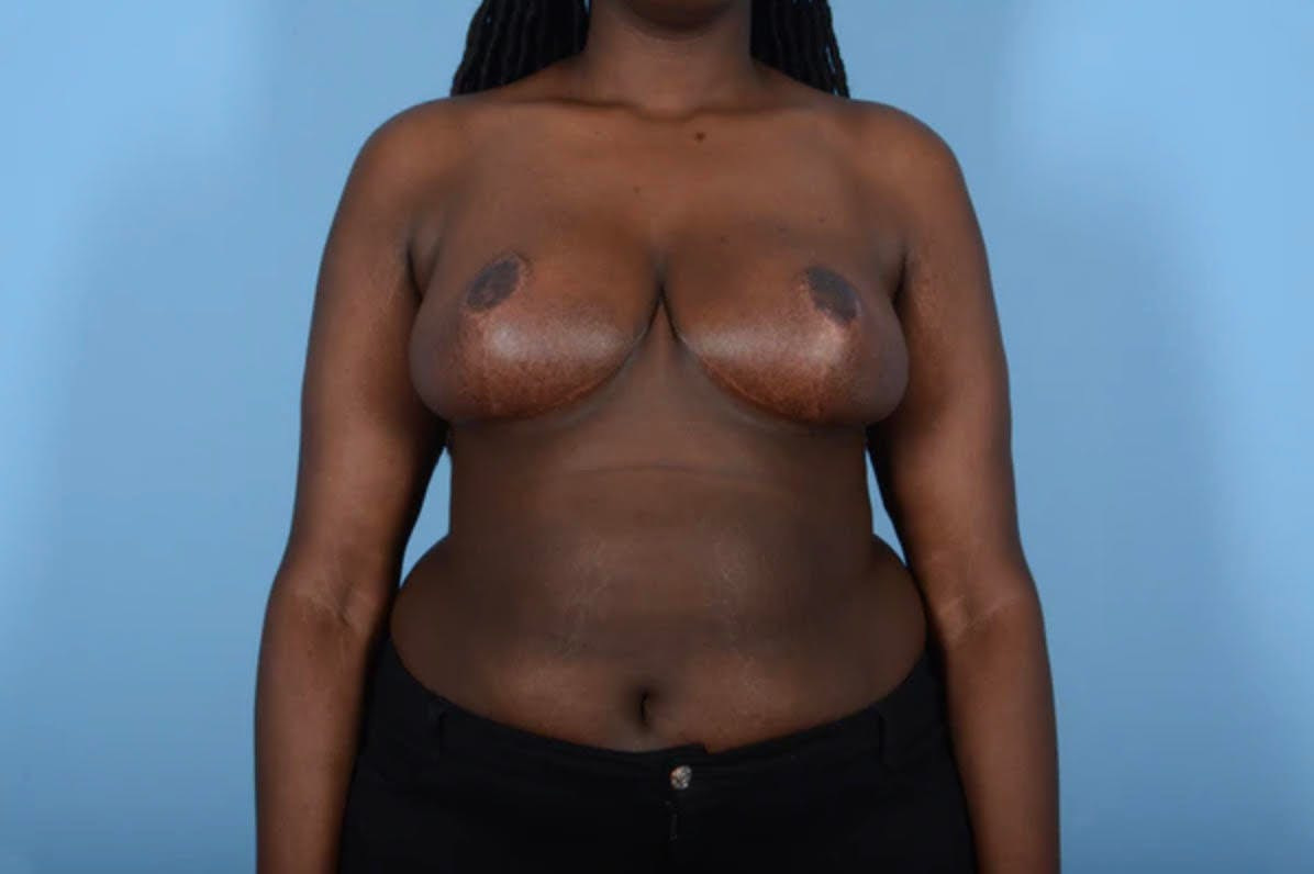 Breast Reduction Gallery - Patient 11203285 - Image 2