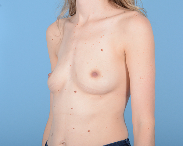 Breast Augmentation Gallery - Patient 10380360 - Image 3