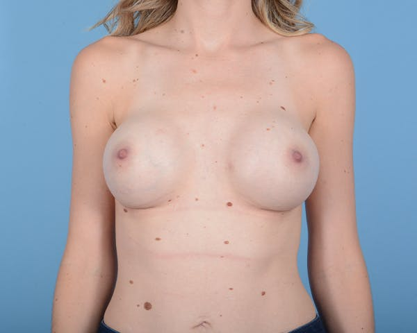 Breast Augmentation Gallery - Patient 10380360 - Image 2