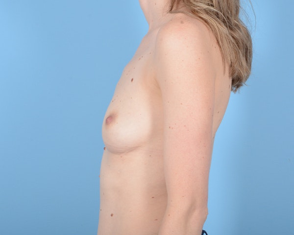 Breast Augmentation Gallery - Patient 10380360 - Image 5