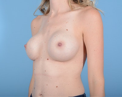 Breast Augmentation Gallery - Patient 10380360 - Image 4