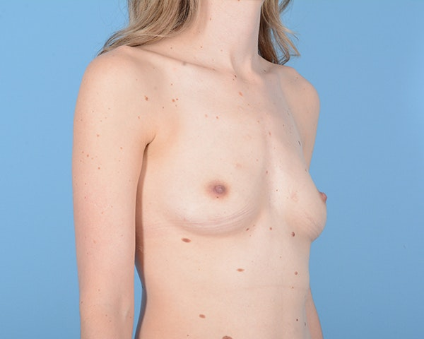 Breast Augmentation Gallery - Patient 10380360 - Image 7