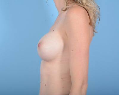 Breast Augmentation Gallery - Patient 10380360 - Image 6