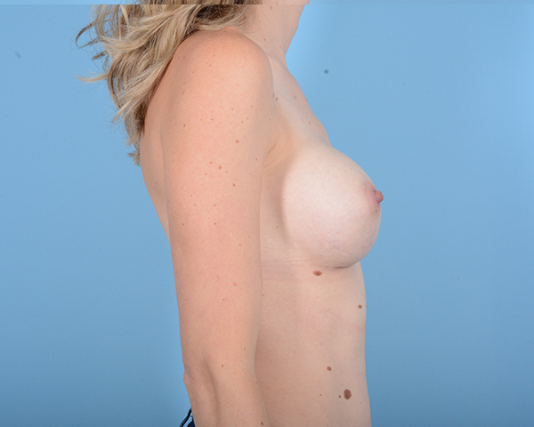 Breast Augmentation Gallery - Patient 10380360 - Image 10