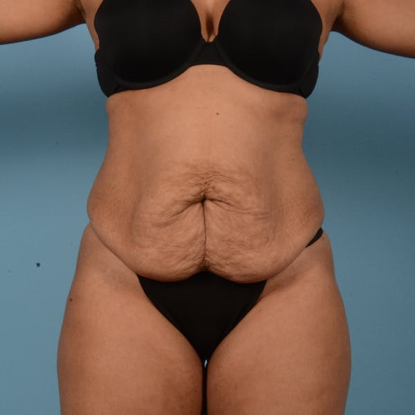 Liposuction Gallery - Patient 18113318 - Image 1