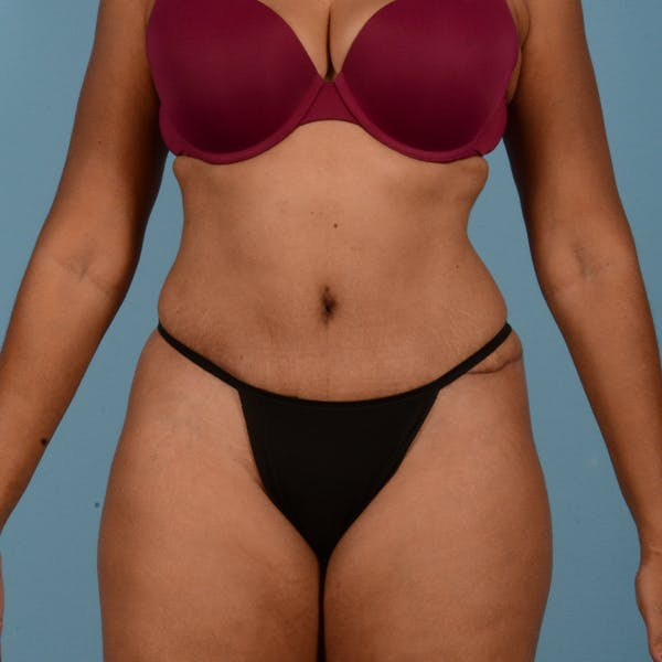 Liposuction Gallery - Patient 18113318 - Image 2