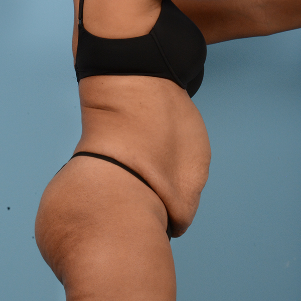Liposuction Gallery - Patient 18113318 - Image 3