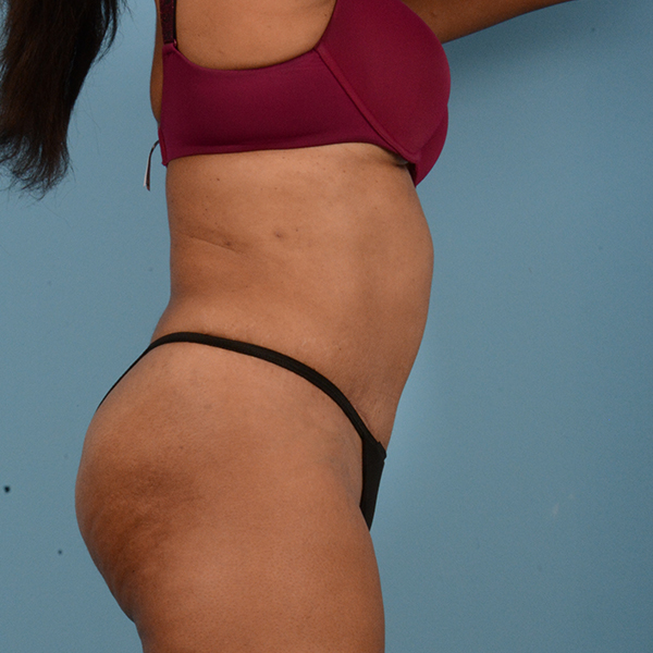 Liposuction Gallery - Patient 18113318 - Image 4