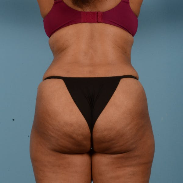 Liposuction Gallery - Patient 18113318 - Image 6