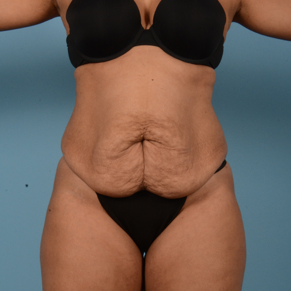 Tummy Tuck Gallery - Patient 18113344 - Image 1