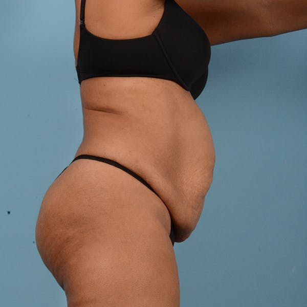Tummy Tuck Gallery - Patient 18113344 - Image 3