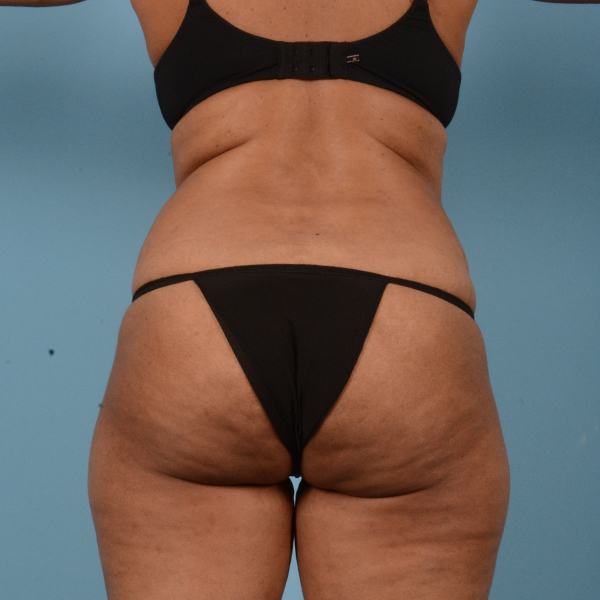 Tummy Tuck Gallery - Patient 18113344 - Image 5