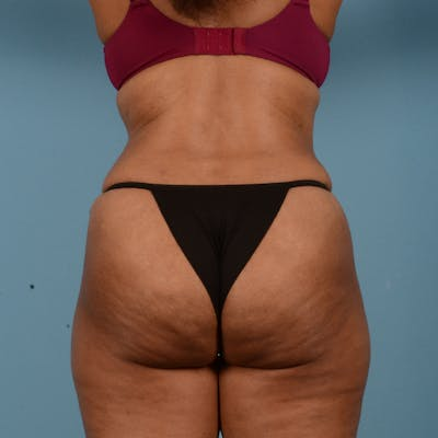 Tummy Tuck Gallery - Patient 18113344 - Image 6