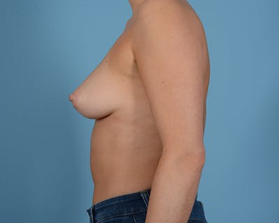 Breast Augmentation Gallery - Patient 10380378 - Image 5