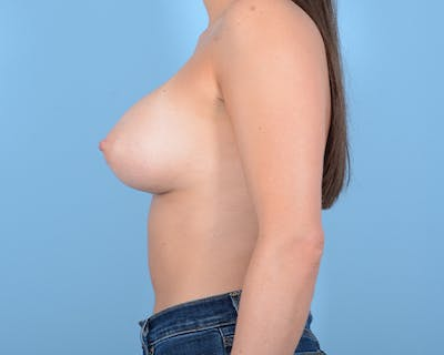 Breast Augmentation Gallery - Patient 10380378 - Image 6