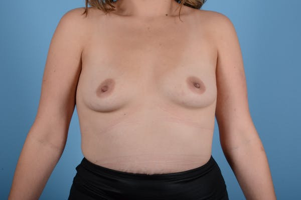 Breast Augmentation Gallery - Patient 18426851 - Image 1
