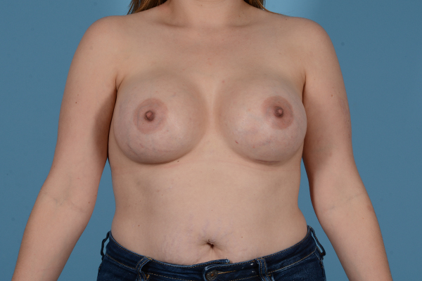 Breast Augmentation Gallery - Patient 18426851 - Image 2