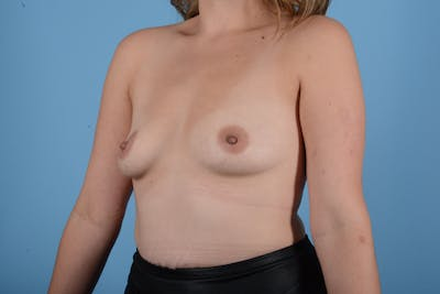 Breast Augmentation Gallery - Patient 18426851 - Image 3