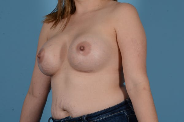 Breast Augmentation Gallery - Patient 18426851 - Image 4