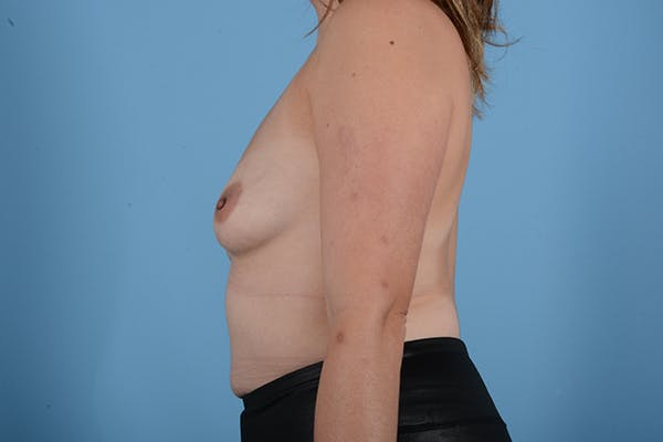 Breast Augmentation Gallery - Patient 18426851 - Image 5