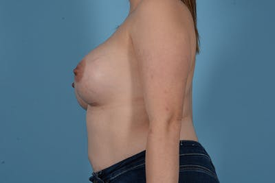 Breast Augmentation Gallery - Patient 18426851 - Image 6