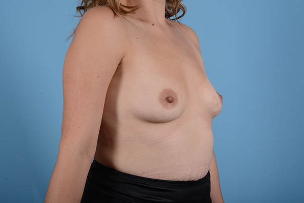 Breast Augmentation Gallery - Patient 18426851 - Image 7