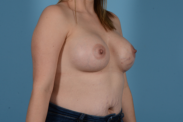 Breast Augmentation Gallery - Patient 18426851 - Image 8