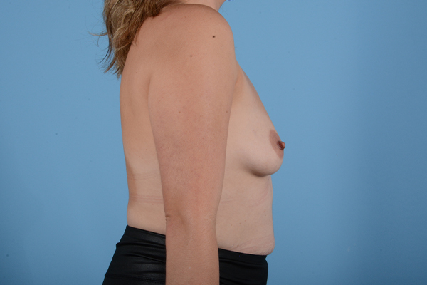 Breast Augmentation Gallery - Patient 18426851 - Image 9
