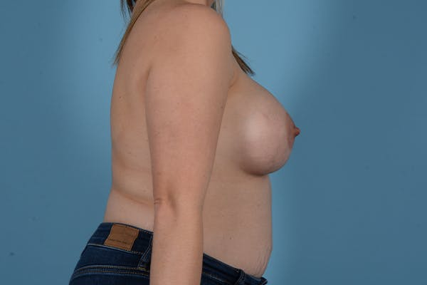 Breast Augmentation Gallery - Patient 18426851 - Image 10