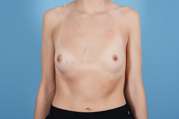 Breast Augmentation Gallery - Patient 18426852 - Image 1