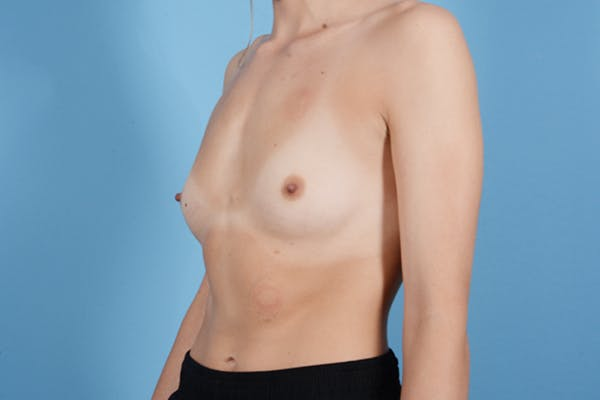 Breast Augmentation Gallery - Patient 18426852 - Image 3
