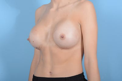 Breast Augmentation Gallery - Patient 18426852 - Image 4