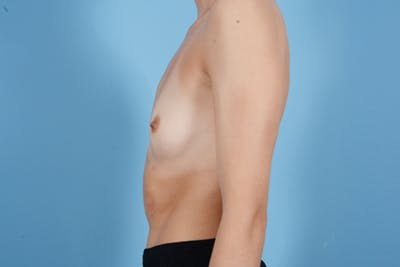 Breast Augmentation Gallery - Patient 18426852 - Image 5