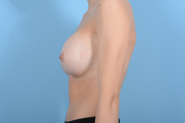 Breast Augmentation Gallery - Patient 18426852 - Image 6