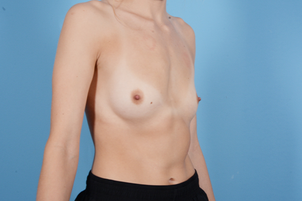 Breast Augmentation Gallery - Patient 18426852 - Image 7