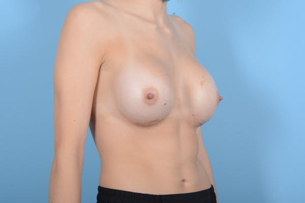 Breast Augmentation Gallery - Patient 18426852 - Image 8