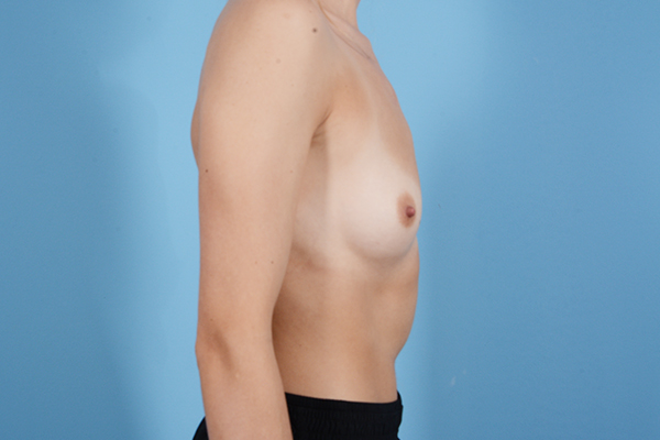 Breast Augmentation Gallery - Patient 18426852 - Image 9