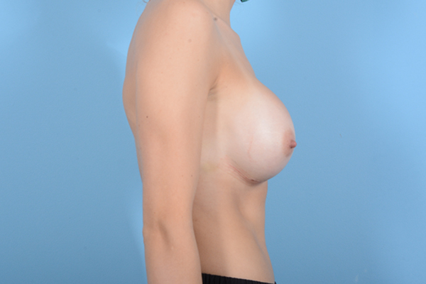 Breast Augmentation Gallery - Patient 18426852 - Image 10