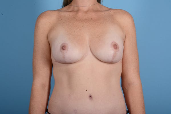Breast Augmentation Gallery - Patient 18426853 - Image 2