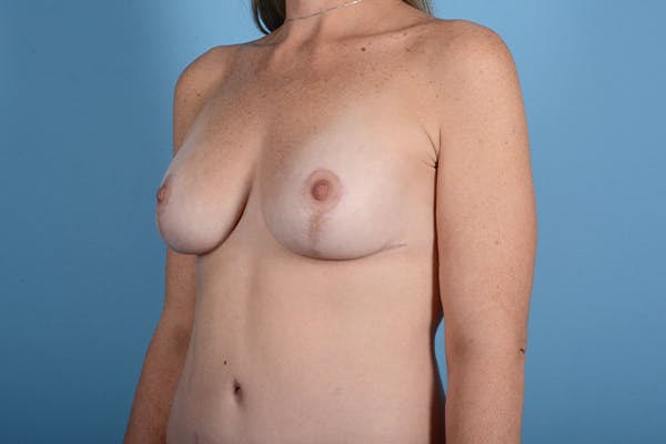 Breast Augmentation Gallery - Patient 18426853 - Image 4