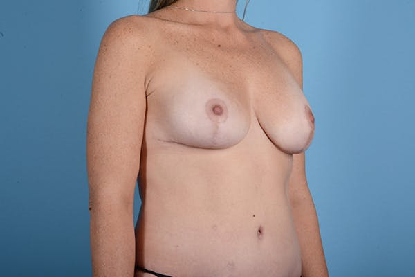 Breast Augmentation Gallery - Patient 18426853 - Image 8